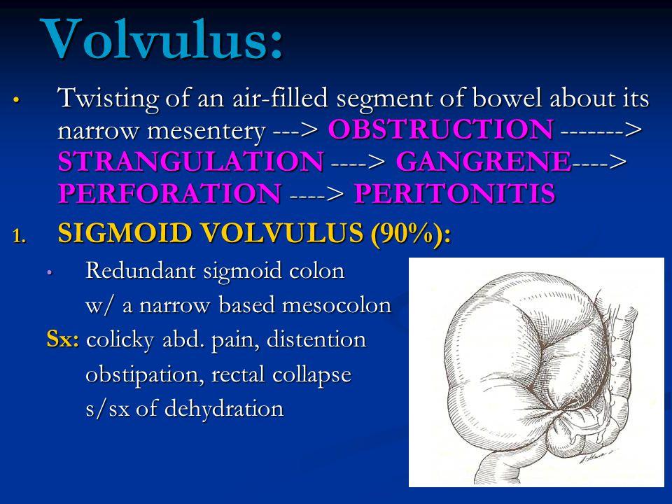 Volvulus: