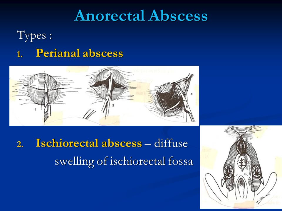 Anorectal Abscess Types : Perianal abscess