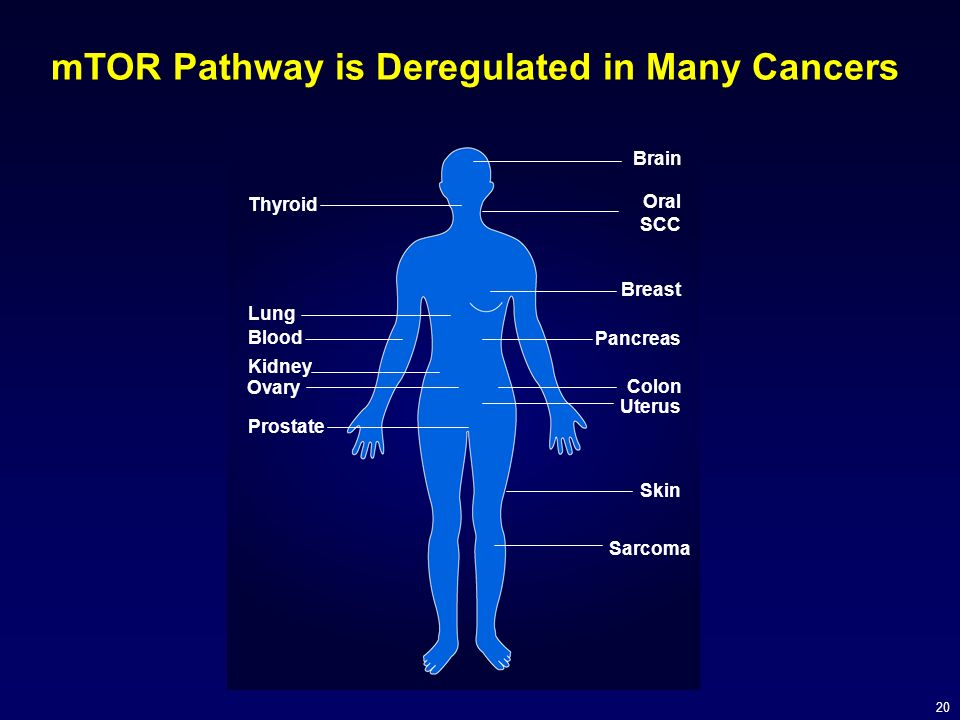 mTOR Pathway is Deregulated in Many Cancers