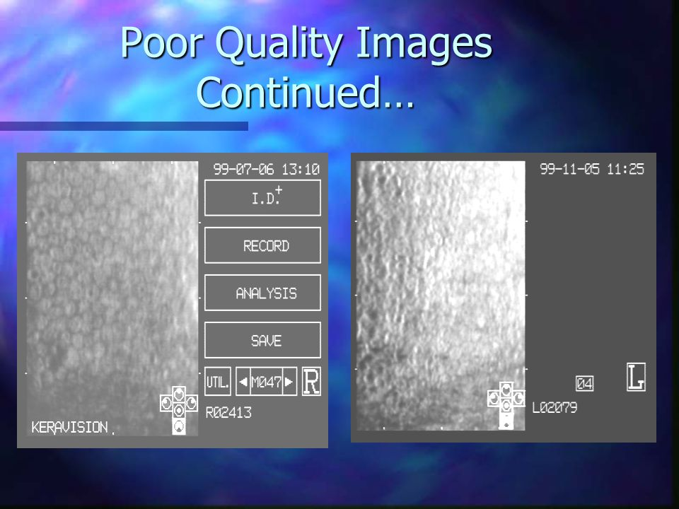 USE OF THE KONAN NONCON-ROBO SPECULAR MICROSCOPE IN ...