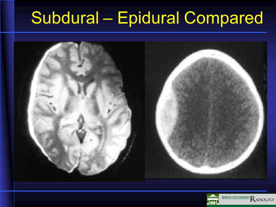 Subdural – Epidural Compared