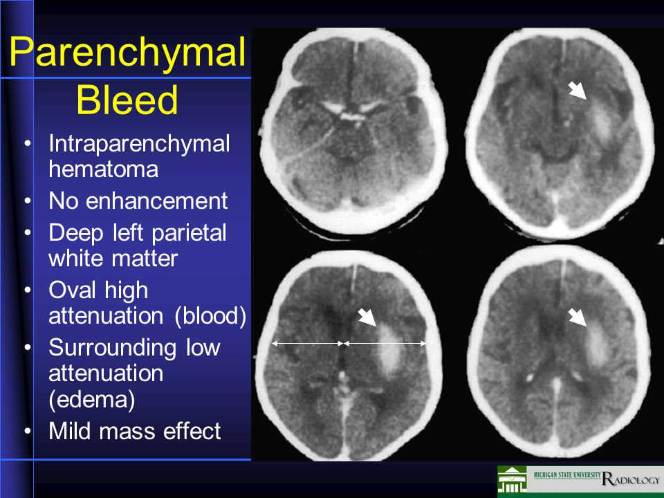 Parenchymal Bleed Intraparenchymal hematoma No enhancement