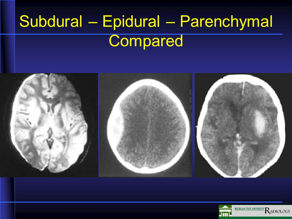 Subdural – Epidural – Parenchymal Compared