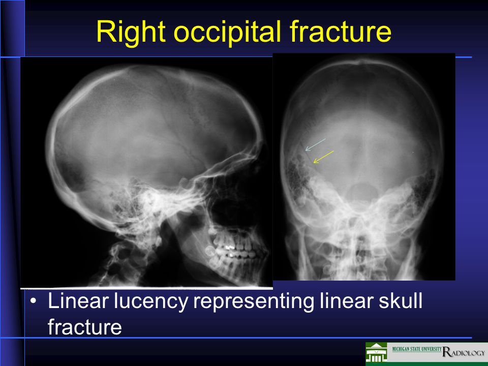 Right occipital fracture