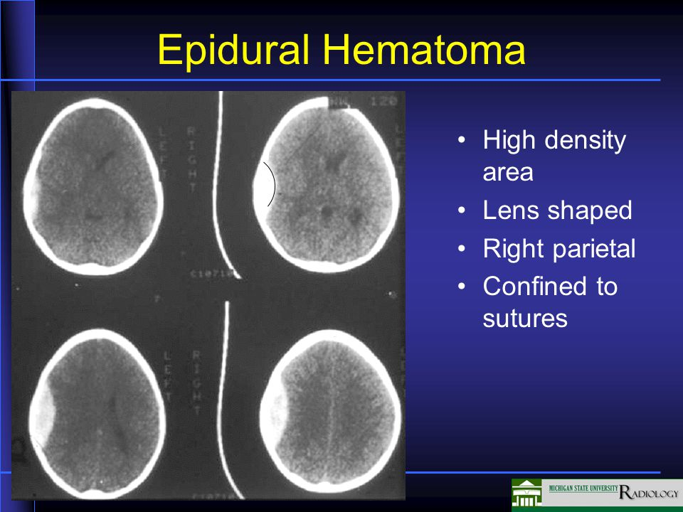 Epidural Hematoma High density area Lens shaped Right parietal