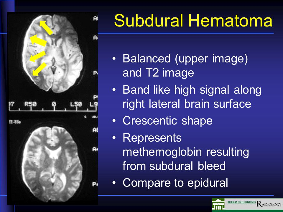 Subdural Hematoma Balanced (upper image) and T2 image