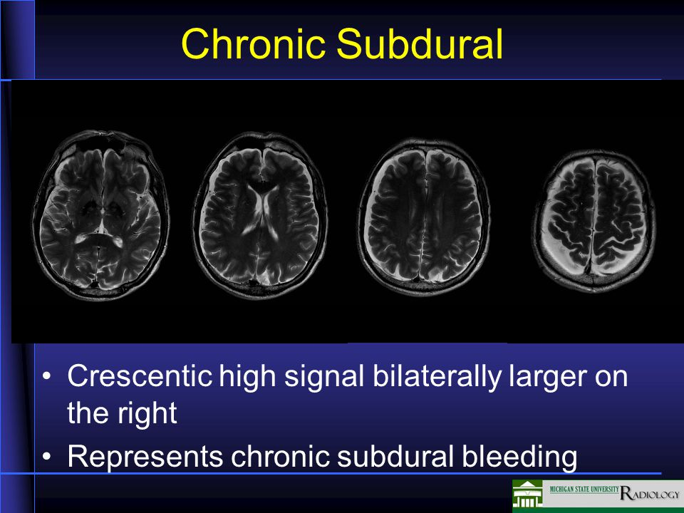 Chronic Subdural
