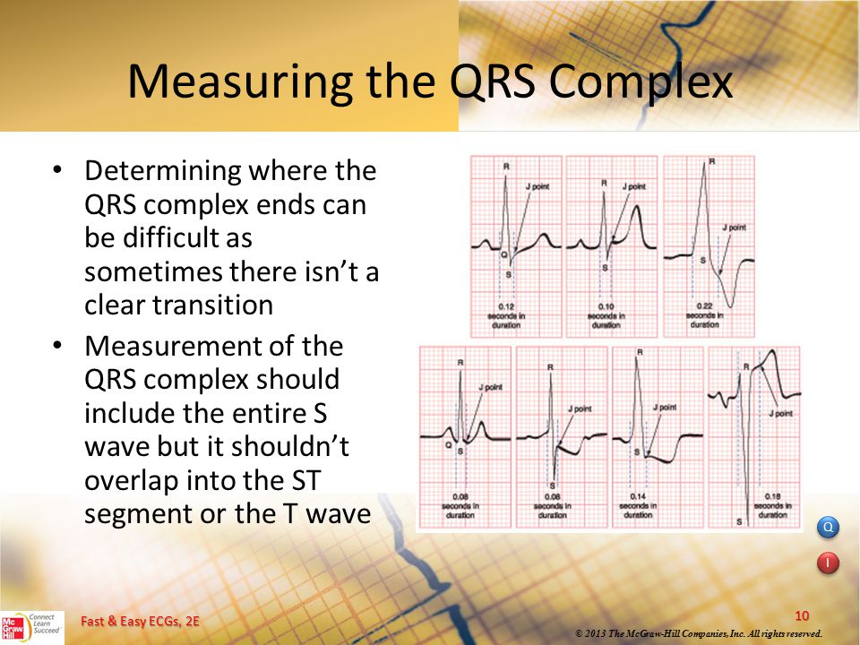 Measuring the QRS Complex
