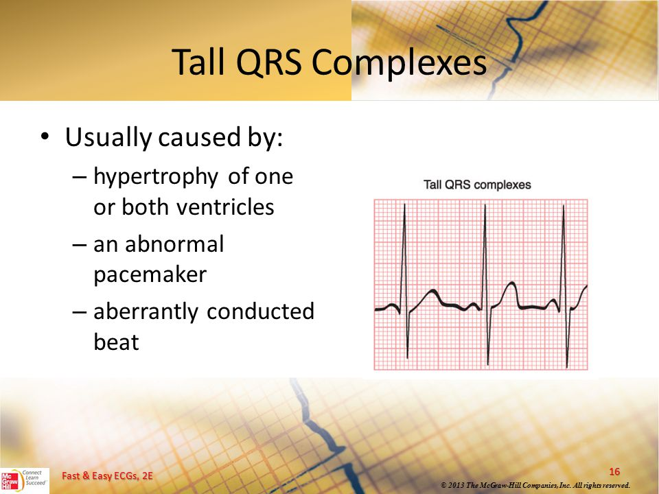 Tall QRS Complexes Usually caused by: