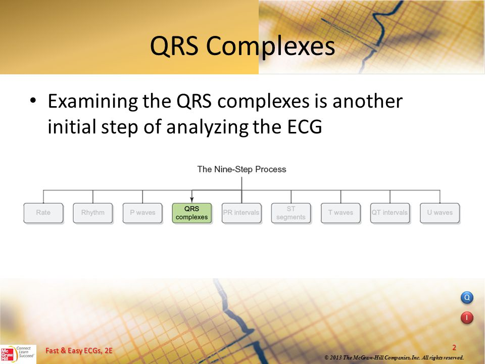 QRS Complexes Examining the QRS complexes is another initial step of analyzing the ECG.