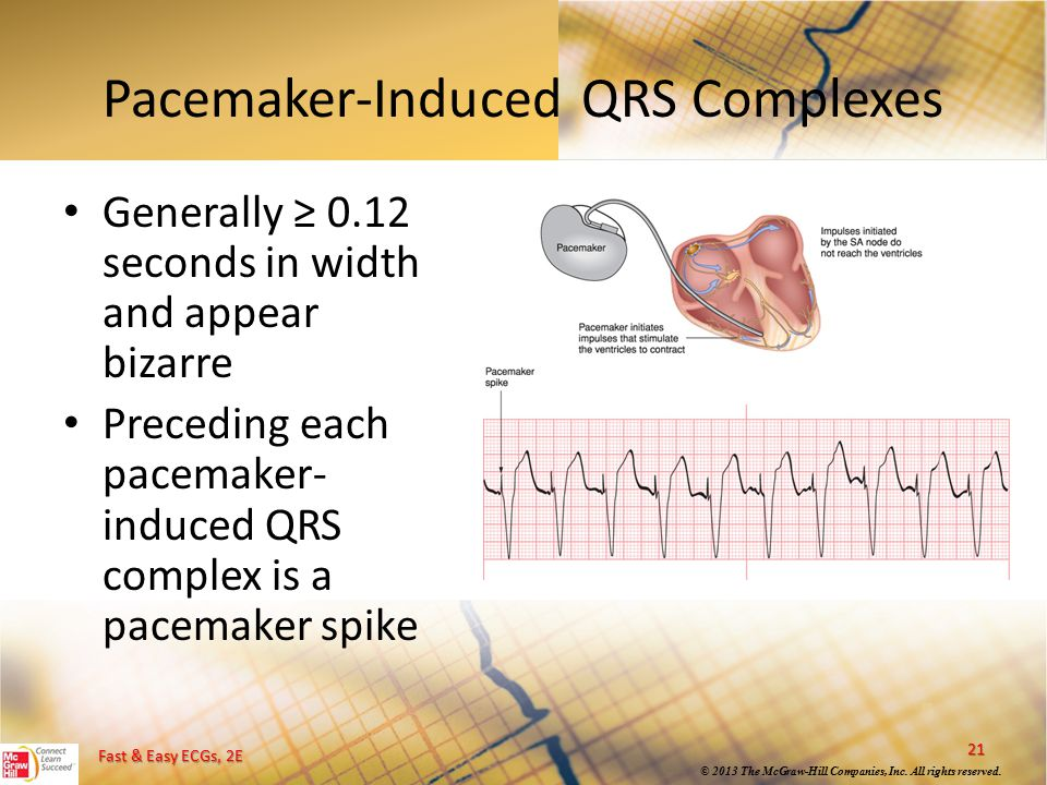 Pacemaker-Induced QRS Complexes