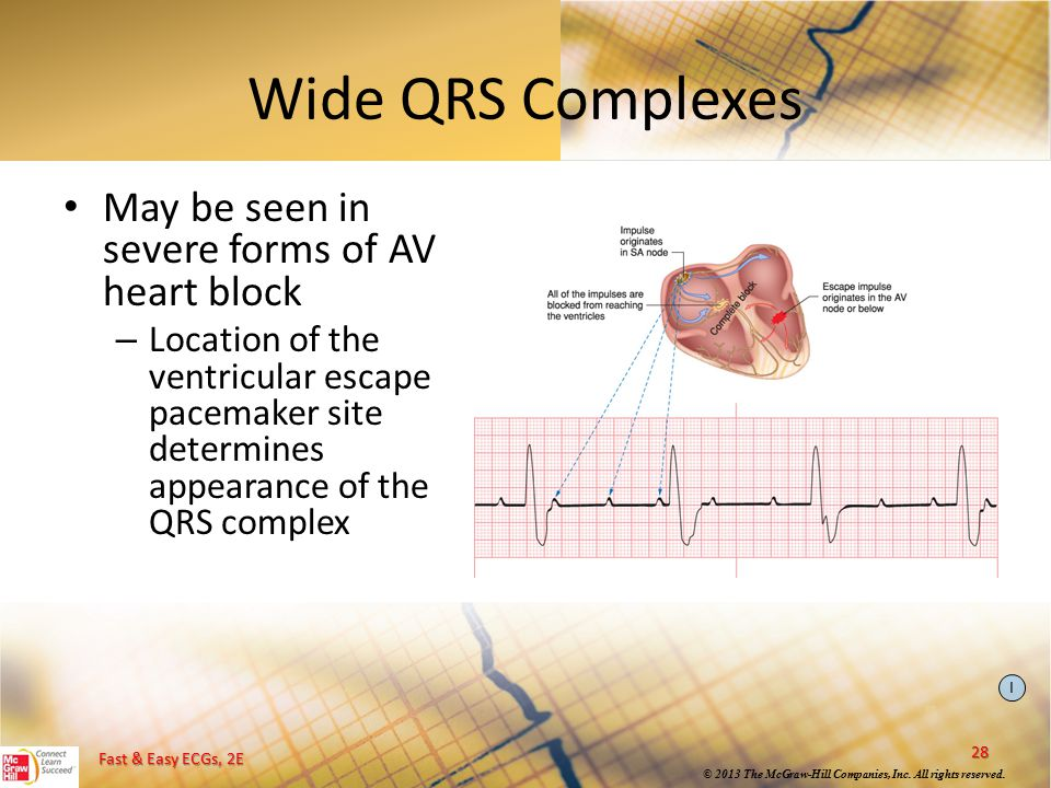 Wide QRS Complexes May be seen in severe forms of AV heart block
