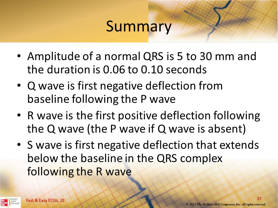 Summary Amplitude of a normal QRS is 5 to 30 mm and the duration is 0.06 to 0.10 seconds.