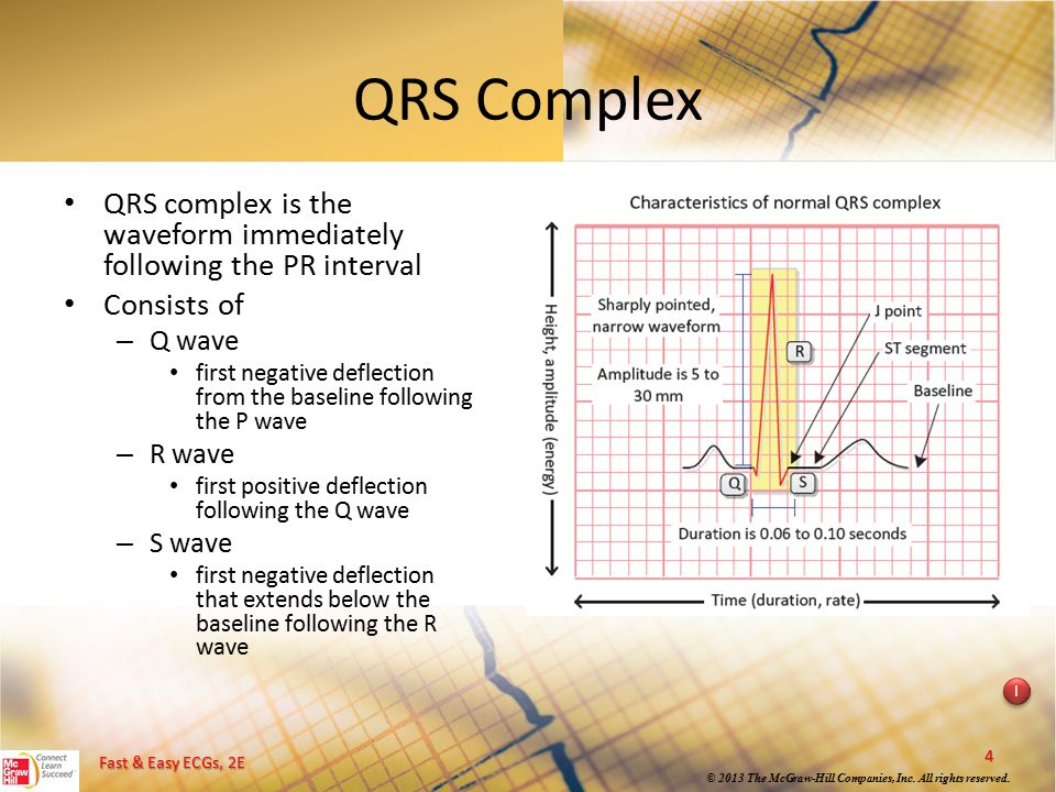 QRS Complex QRS complex is the waveform immediately following the PR interval. Consists of. Q wave.