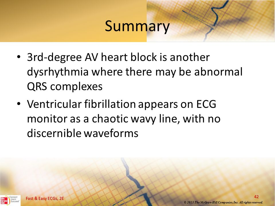 Summary 3rd-degree AV heart block is another dysrhythmia where there may be abnormal QRS complexes.