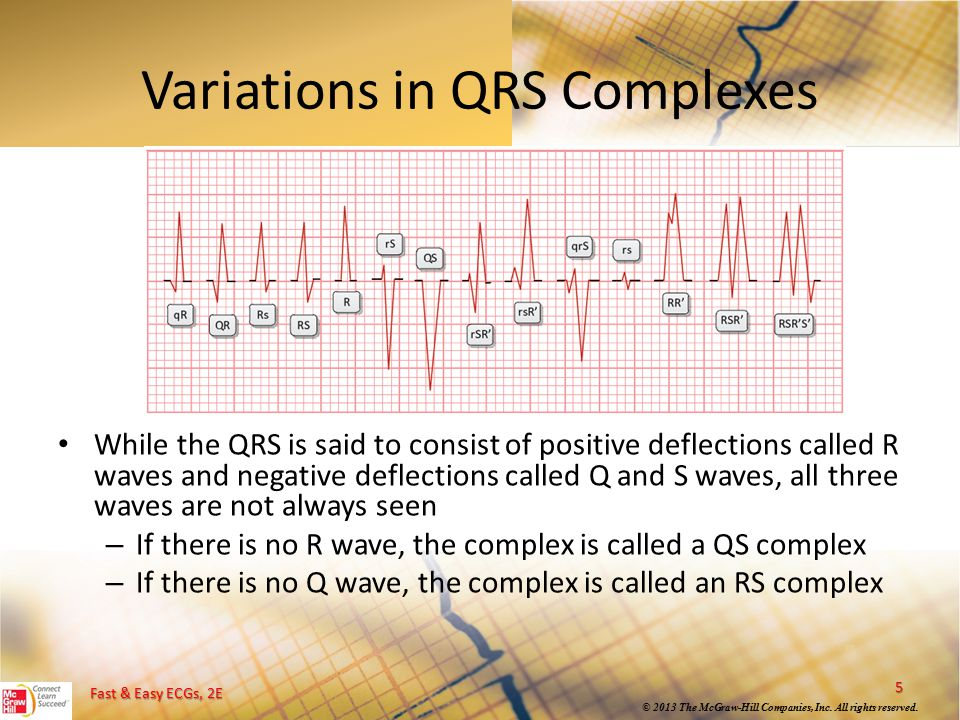 Variations in QRS Complexes