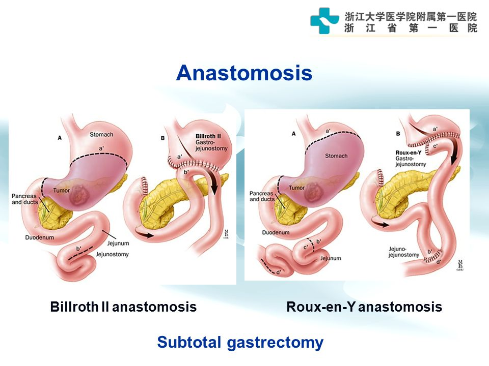 Gastric Cancer 浙江大学医学院附属第一医院 胃肠外科 于吉人 Ji-Ren Yu - ppt ...  Gastric Cancer ...