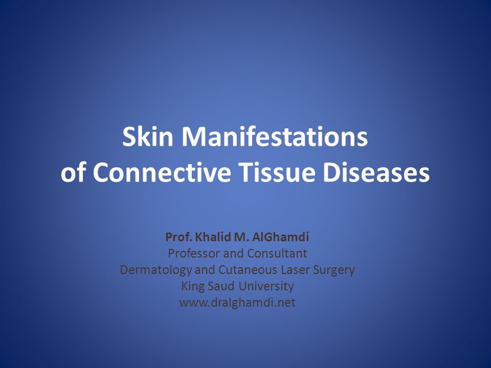 Mixed Connective Tissue Disease Natural Treatment