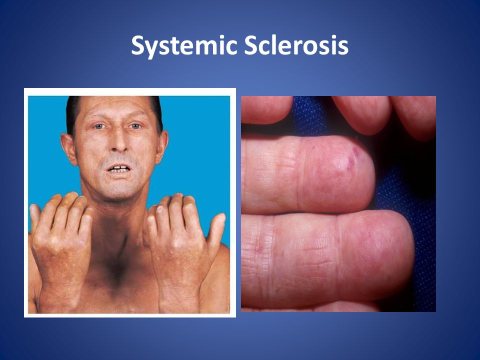 Skin Manifestations of Connective Tissue Diseases - ppt