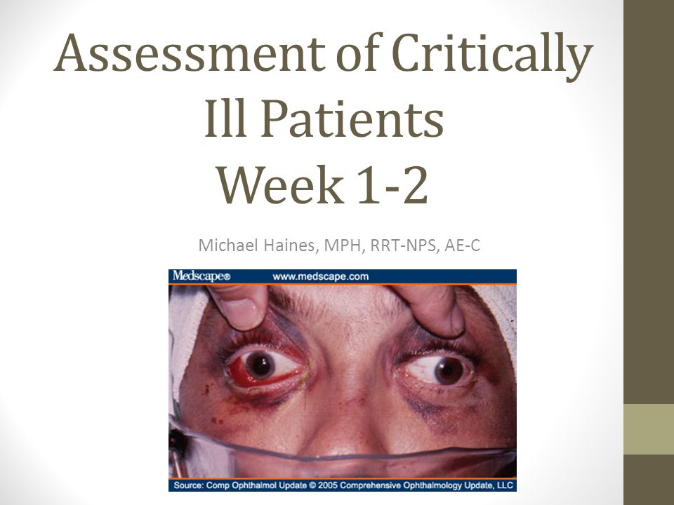 Pain assessment scales in nonverbal critically ill adult patients: ventilator-related issues