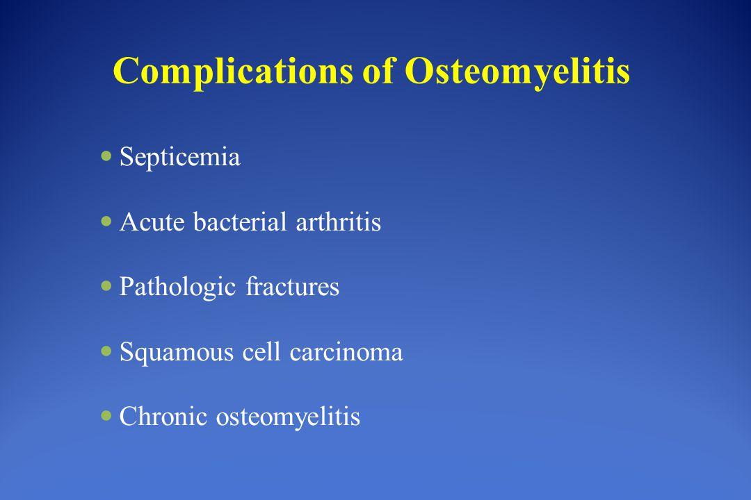 osteochondritis ossificans