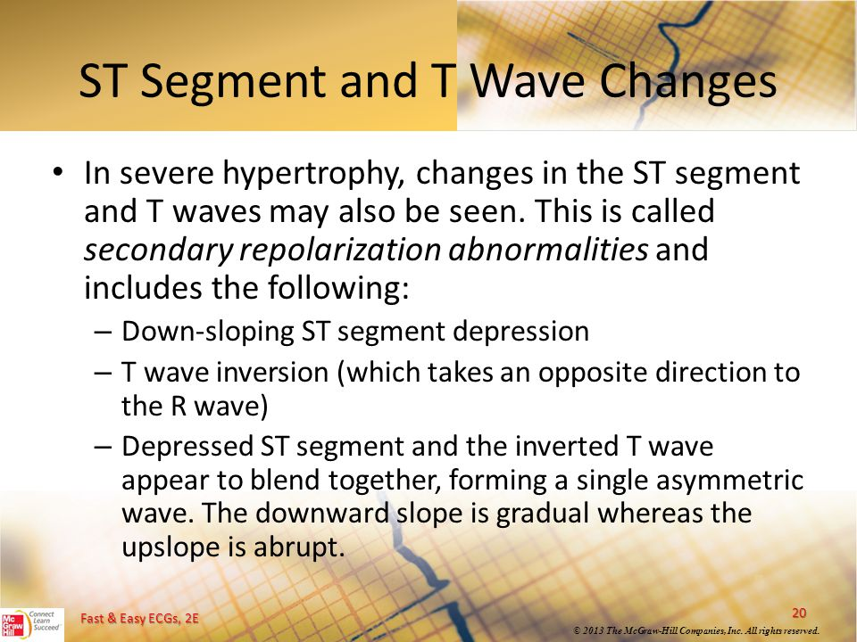 ST Segment and T Wave Changes