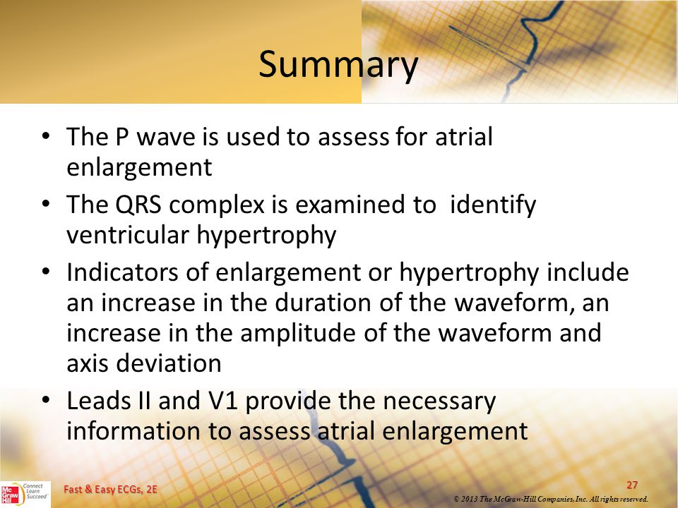 Summary The P wave is used to assess for atrial enlargement