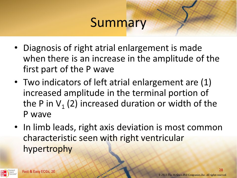 Summary Diagnosis of right atrial enlargement is made when there is an increase in the amplitude of the first part of the P wave.