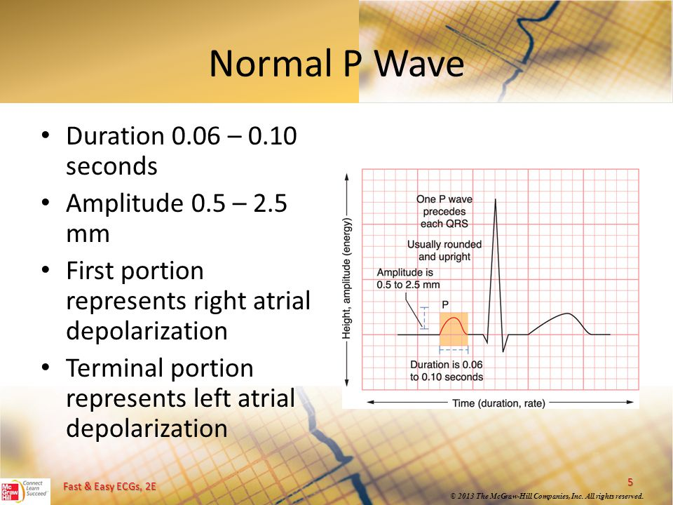 Normal P Wave Duration 0.06 – 0.10 seconds Amplitude 0.5 – 2.5 mm