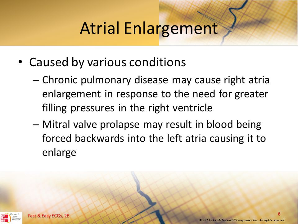 Atrial Enlargement Caused by various conditions