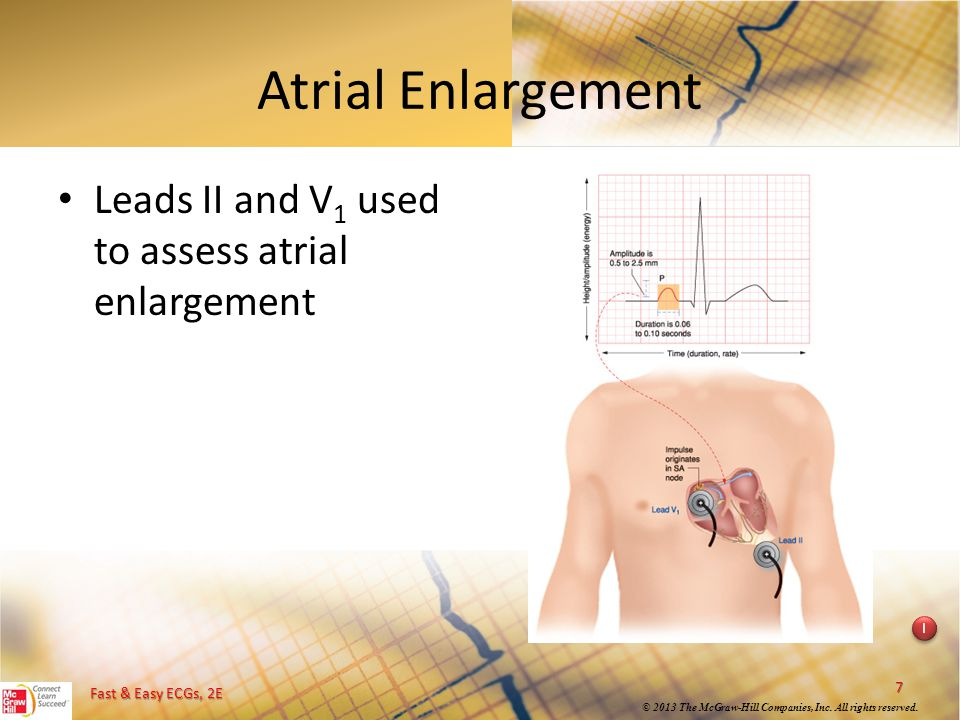 Atrial Enlargement Leads II and V1 used to assess atrial enlargement