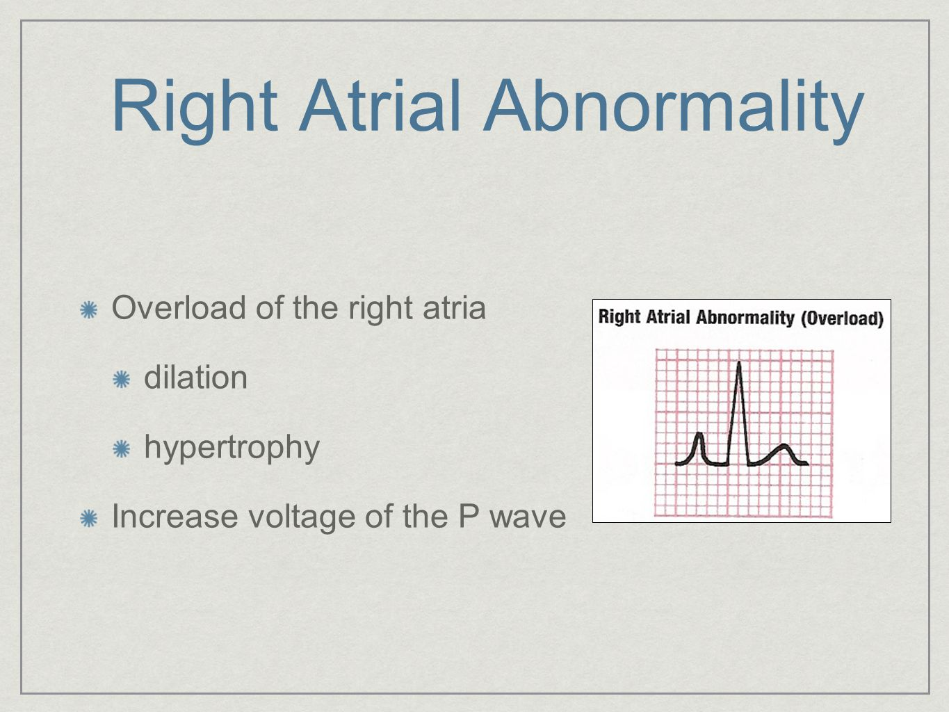 Right Atrial Abnormality