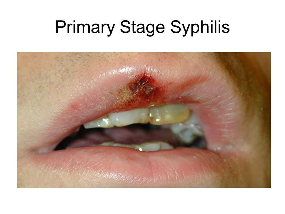 Primary Stage Syphilis