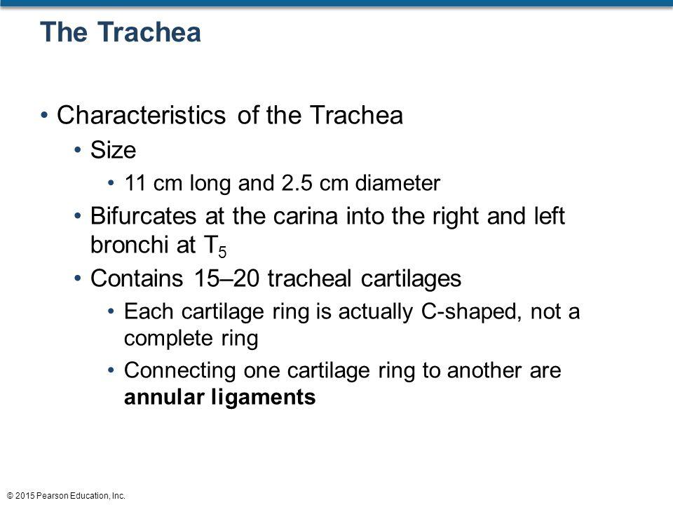 Tracheal Cartilage Ring Ridge