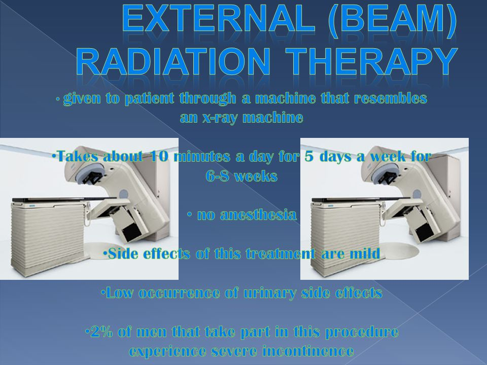 external (beam) radiation therapy