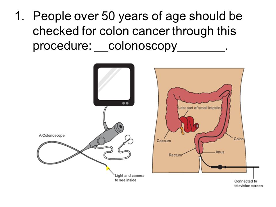 colon single men over 50 Anyone with a colon can get colorectal cancer - a collective term that includes both colon cancer  most cases happen over age 50  active men get less.