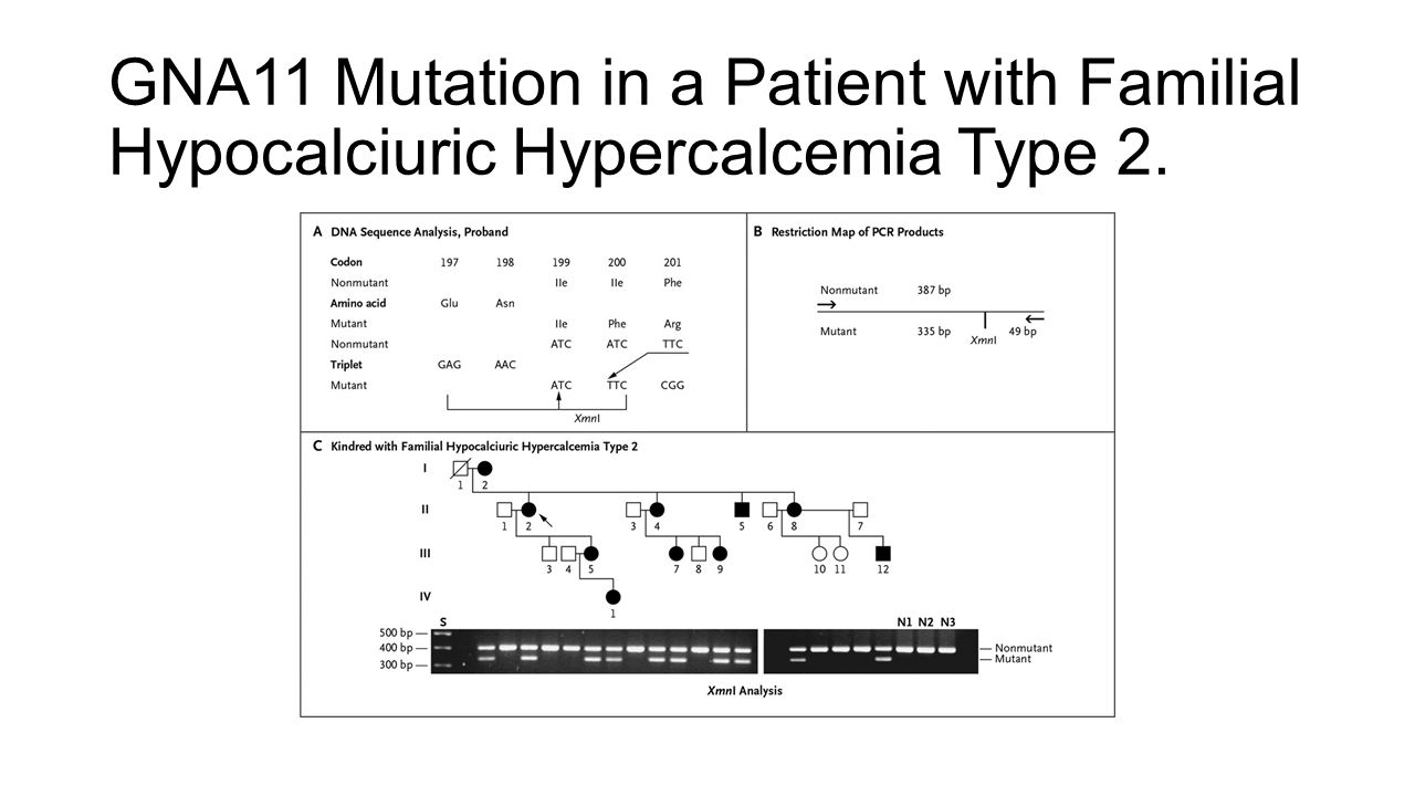 GNA11 Mutation in a Patient with Familial Hypocalciuric Hypercalcemia Type 2.
