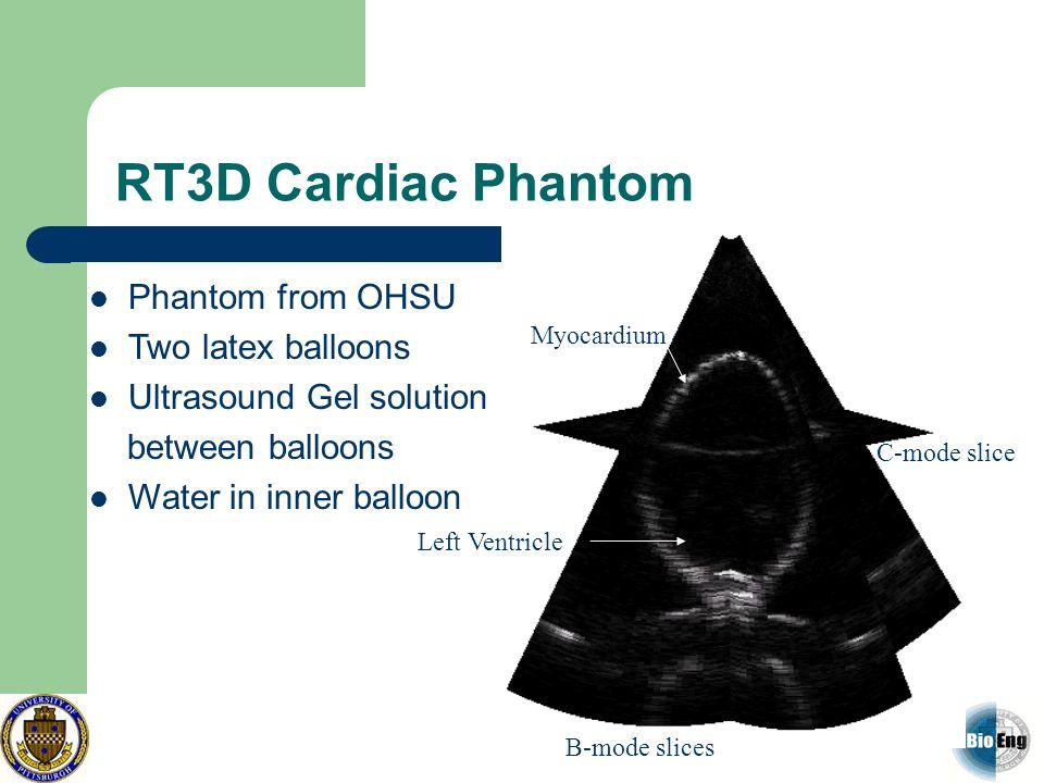 RT3D Cardiac Phantom Phantom from OHSU Two latex balloons