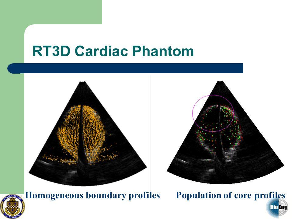 RT3D Cardiac Phantom Homogeneous boundary profiles