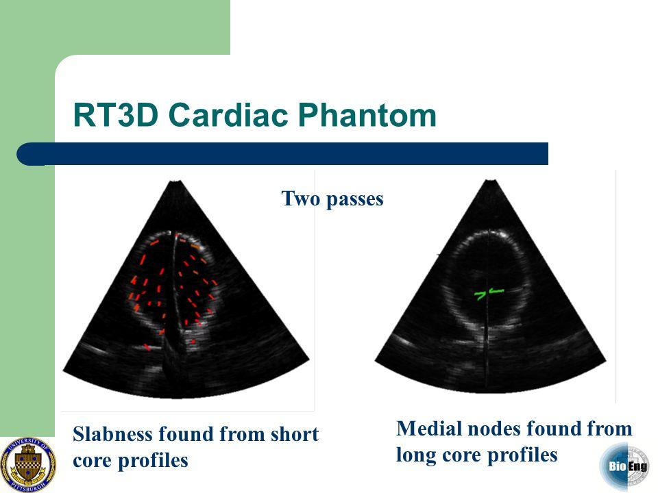 RT3D Cardiac Phantom Two passes
