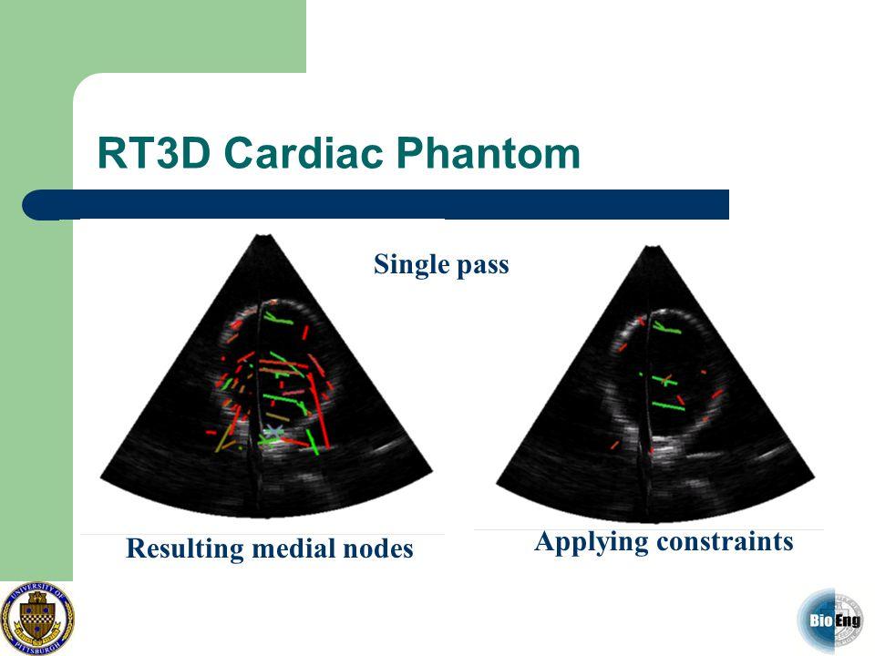 RT3D Cardiac Phantom Single pass Applying constraints