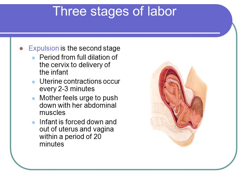 Three stages of labor Expulsion is the second stage