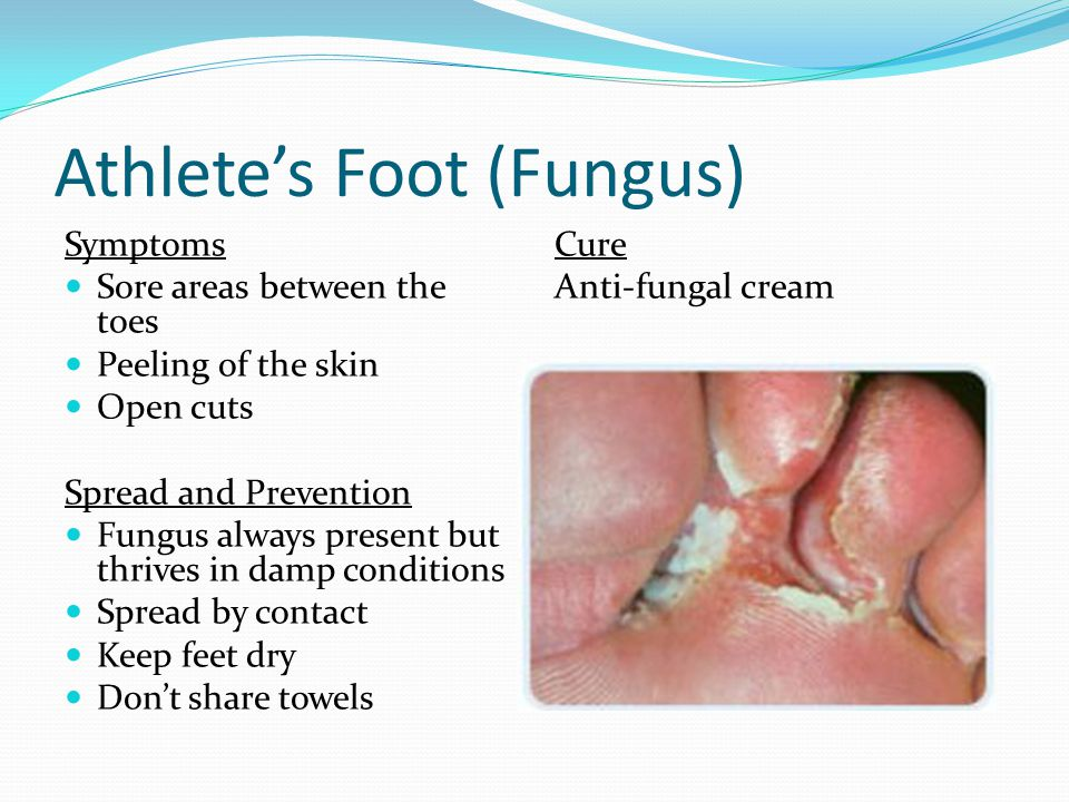 Natural Athletes Foot Cure Tea Tree