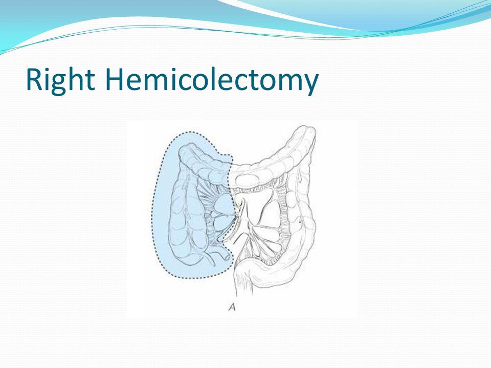 Right hemicolectomy anatomy
