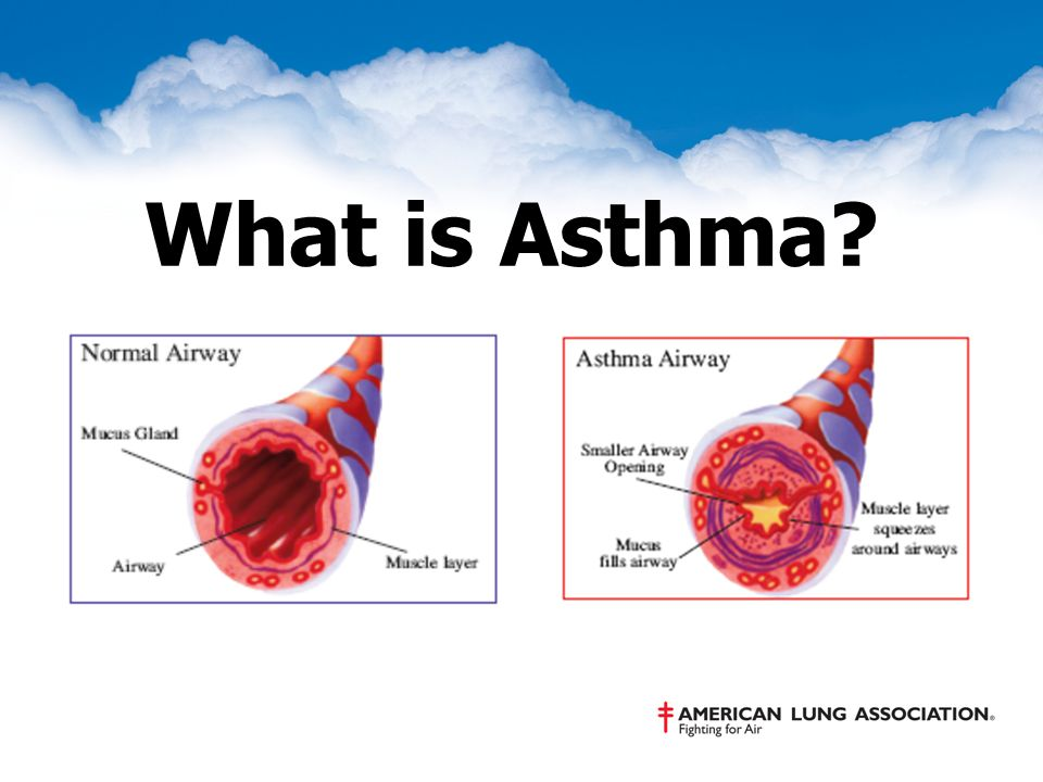 Learn How to Control Asthma