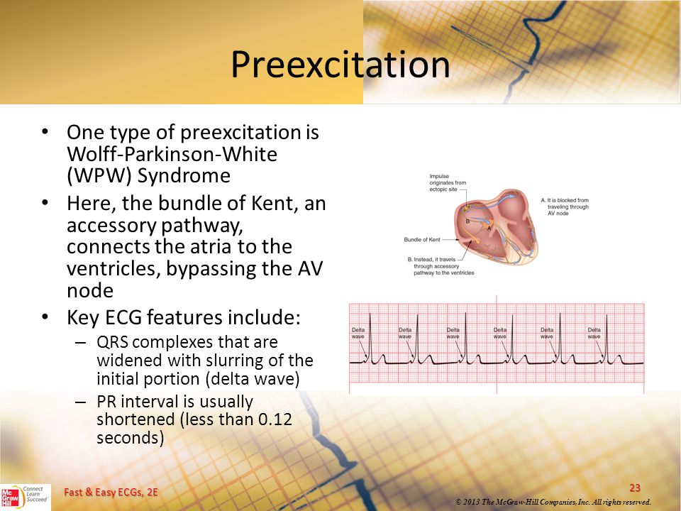 Preexcitation One type of preexcitation is Wolff-Parkinson-White (WPW) Syndrome.