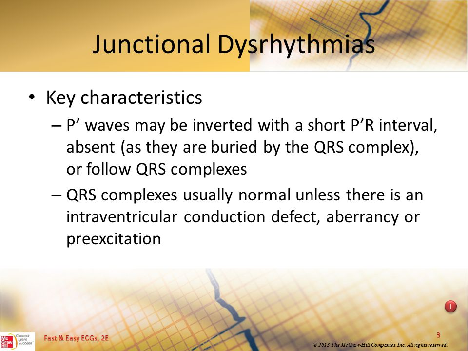 Junctional Dysrhythmias