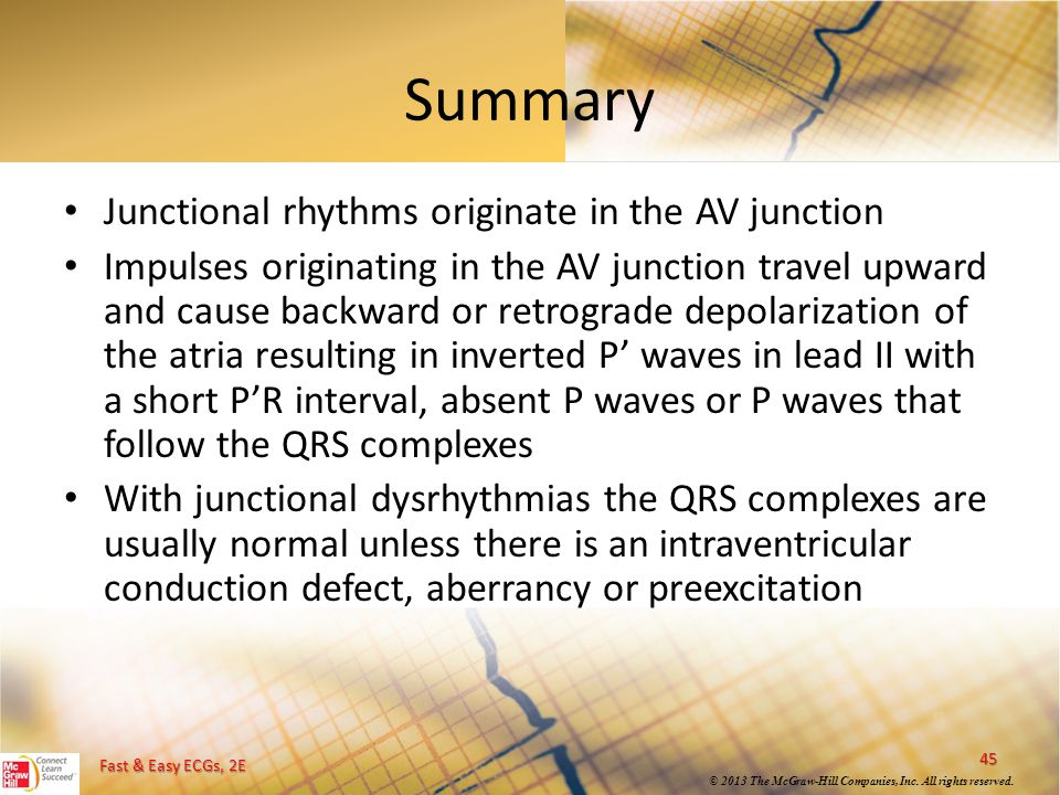 Summary Junctional rhythms originate in the AV junction