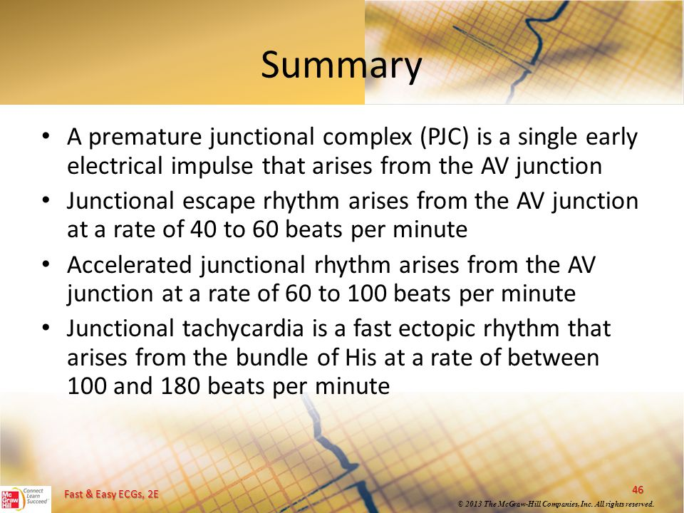 Summary A premature junctional complex (PJC) is a single early electrical impulse that arises from the AV junction.