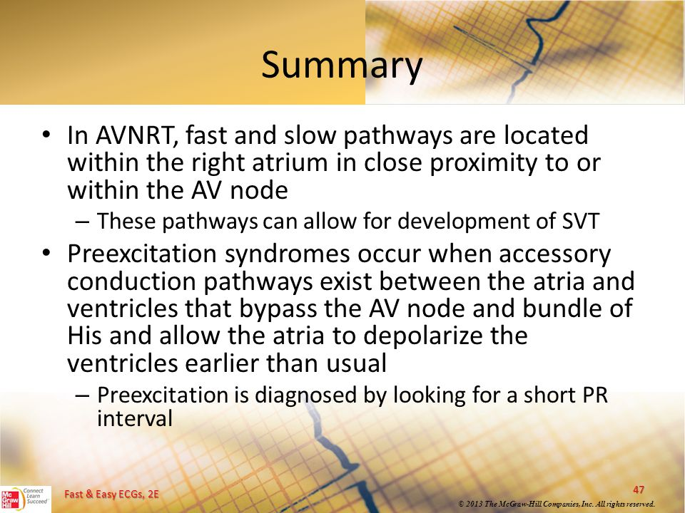 Summary In AVNRT, fast and slow pathways are located within the right atrium in close proximity to or within the AV node.